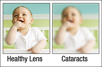 Cataracts before and after